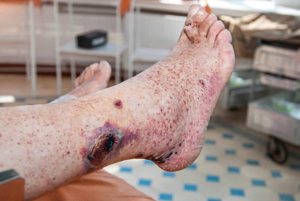 Hemorrhagic vasculitis. Diabetic foot syndrome stock photo