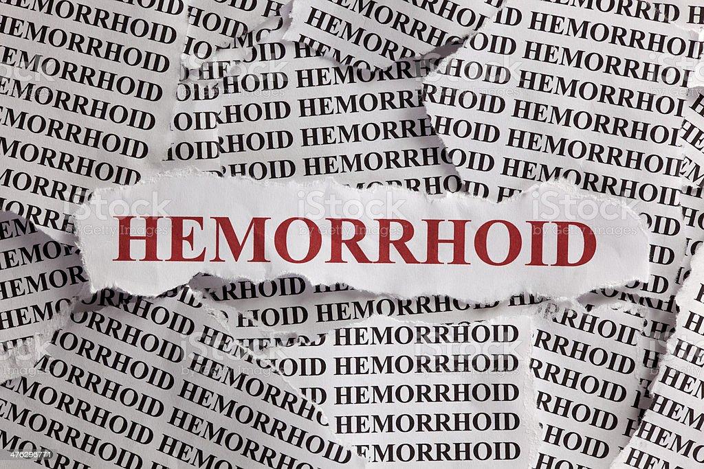 Hemorrhoid stock photo