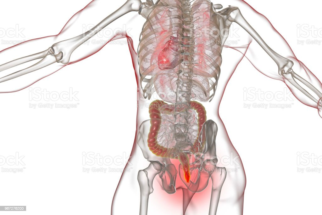 Hemorrhoids Treatment And Prevention Concept Stock Photo More