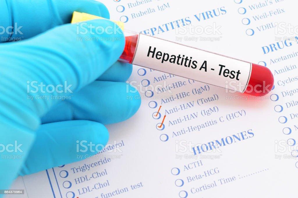 Hepatitis A test stock photo