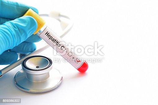 Blood sample positive with hepatitis C virus (HCV)