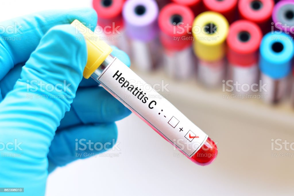 Hepatitis C positive stock photo
