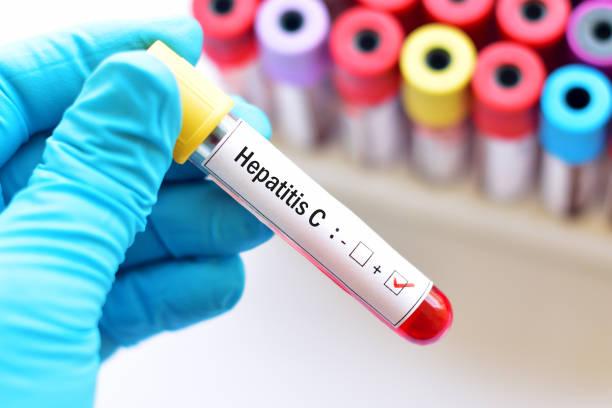 Hepatitis C positive stock photo