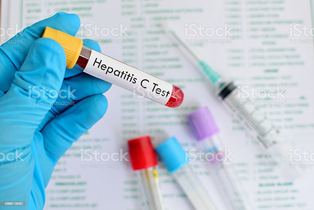 Hepatitis C testing stock photo
