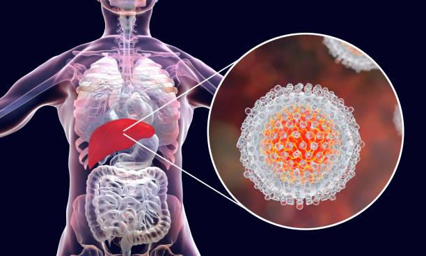 Hepatitis C virus infection medical concept stock photo