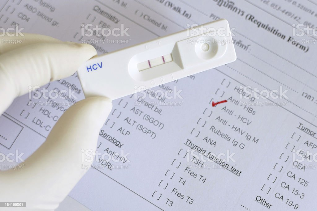 Hepatitis C virus (HCV) positive - Royalty-free Analyzing Stock Photo
