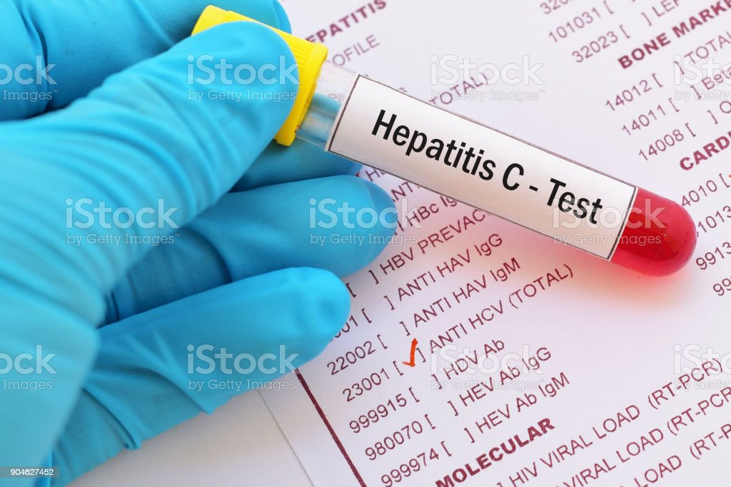 Hepatitis C virus (HCV) test stock photo