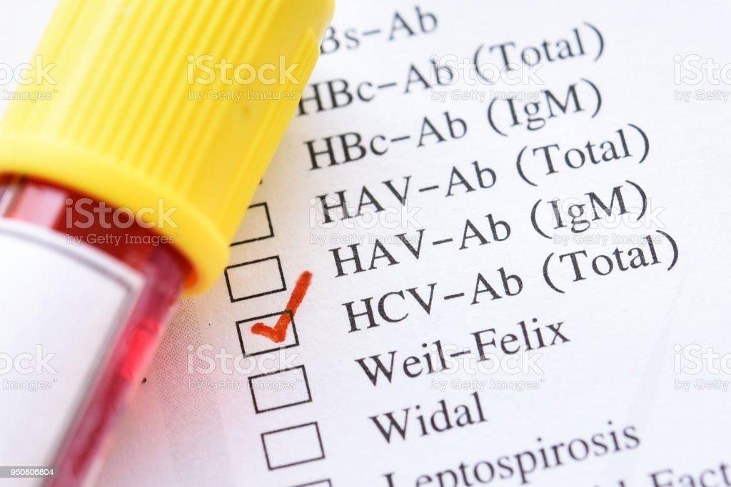 Hepatitis C virus (HCV) test stock photo