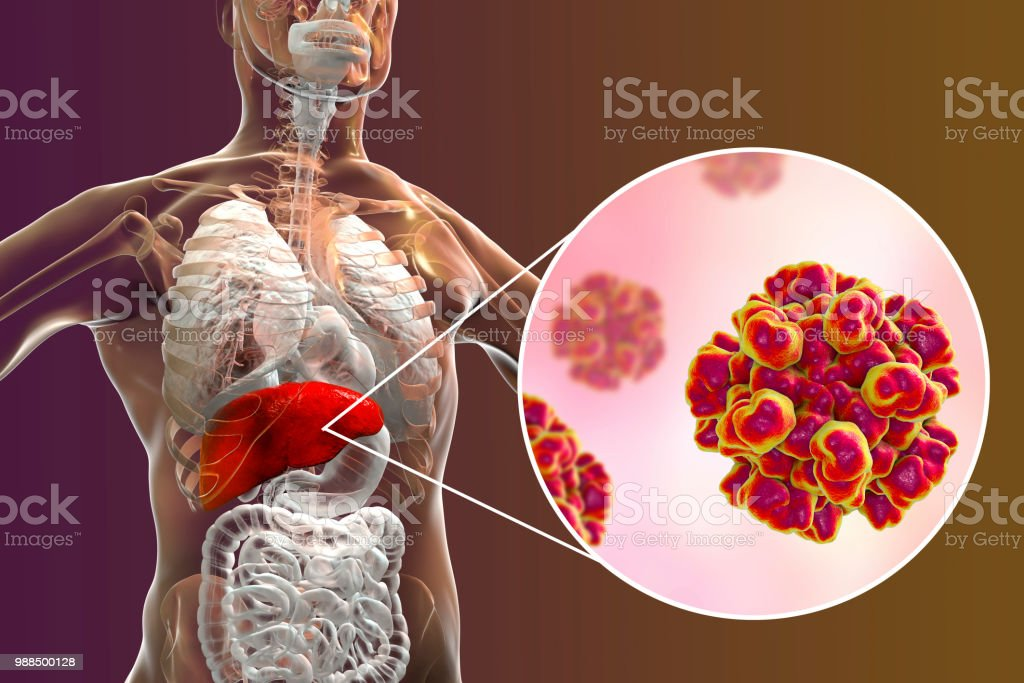Hepatitis E viral infection stock photo