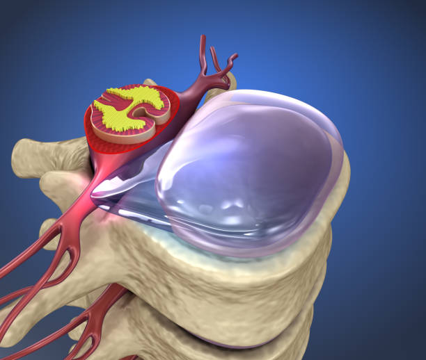 Hernaited disque de la colonne vertébrale humaine en détails - Photo