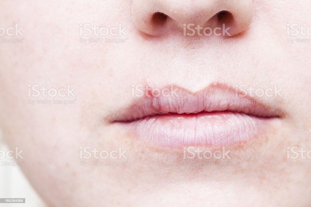 Herpes frío dolor en la boca - foto de stock