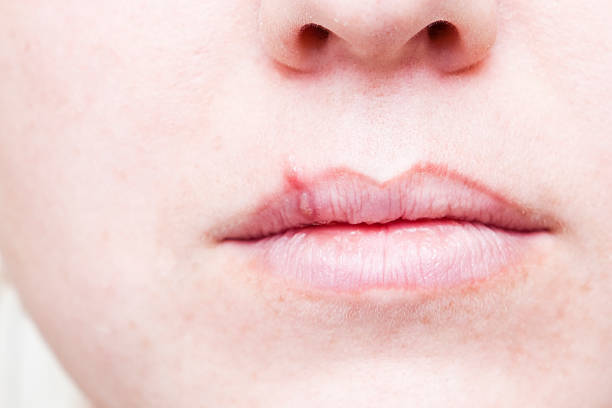 Herpes Cold Sore on Mouth A stock photo of a young girl with a herpes viral cold sore on her lip and mouth. herpes stock pictures, royalty-free photos & images