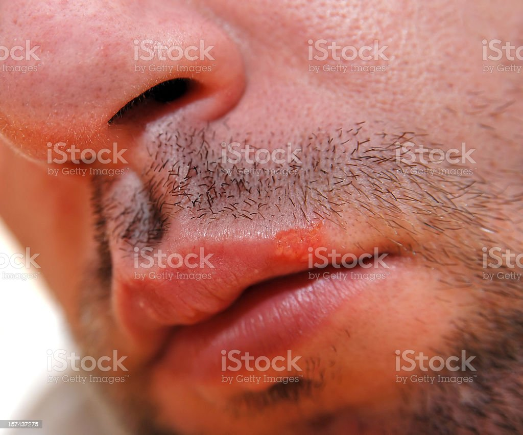 Herpes labialis, cold sore or fever blister stock photo