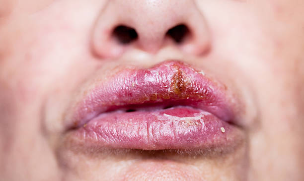 Herpes simplex oral infection Close up photo with shallow depth of field of a big herpes simplex infection on lips. This is the most common form of infection usualy  called cold sores or fever blisters. herpes stock pictures, royalty-free photos & images