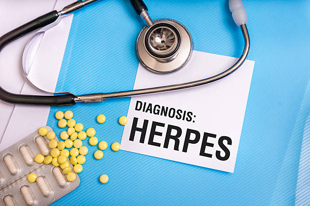 Herpes word written on medical blue folder with patient files Herpes word written on medical blue folder with patient files, pills and stethoscope on background herpes stock pictures, royalty-free photos & images