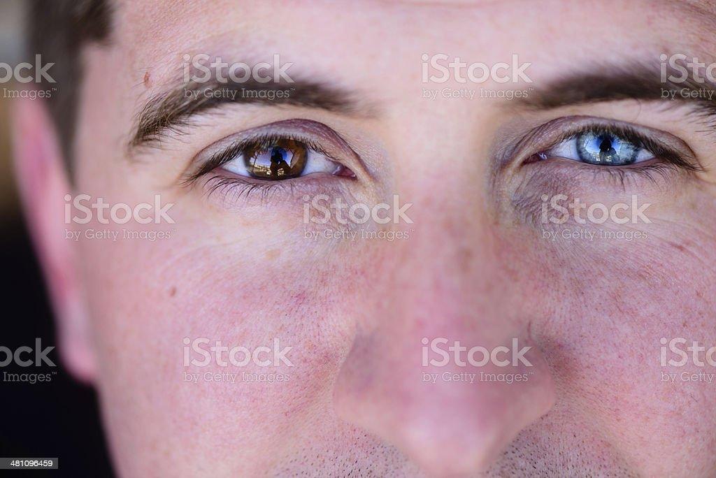 Heterochromia – Foto