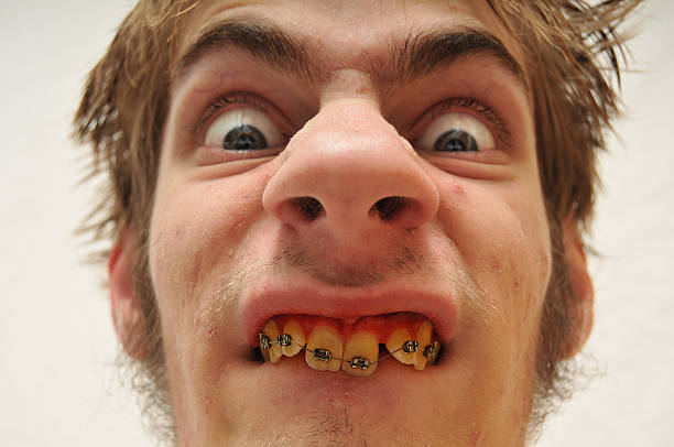 Best Ugly Face Stock Photos, Pictures  Royalty-Free -9183