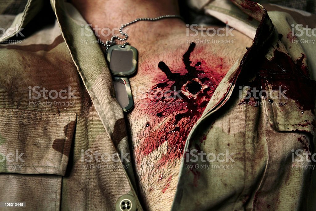High Caliber Bullet Wound stock photo