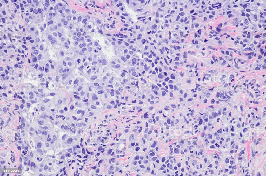 High grade infiltrating ductal carcinoma of the breast stock photo