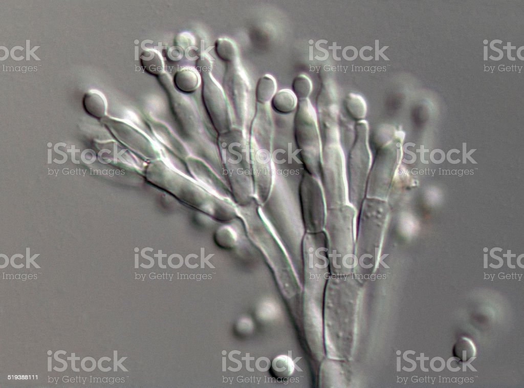 High magnification photograph of Penicillium fungus stock photo
