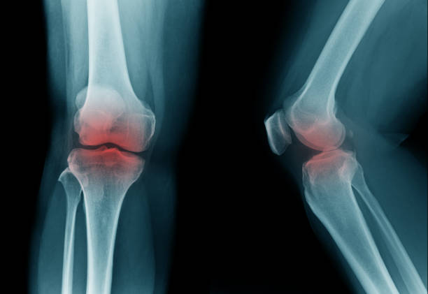 high quality x-ray knee joint of old man, oa knee of old man on black background in blue tone - disfigure stock pictures, royalty-free photos & images