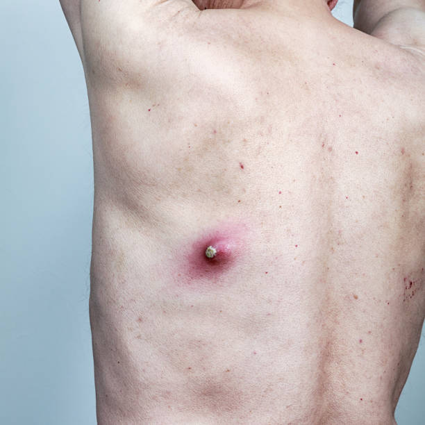 highly infected sebaceous cyst on senior man's back - cyst stock pictures, royalty-free photos & images