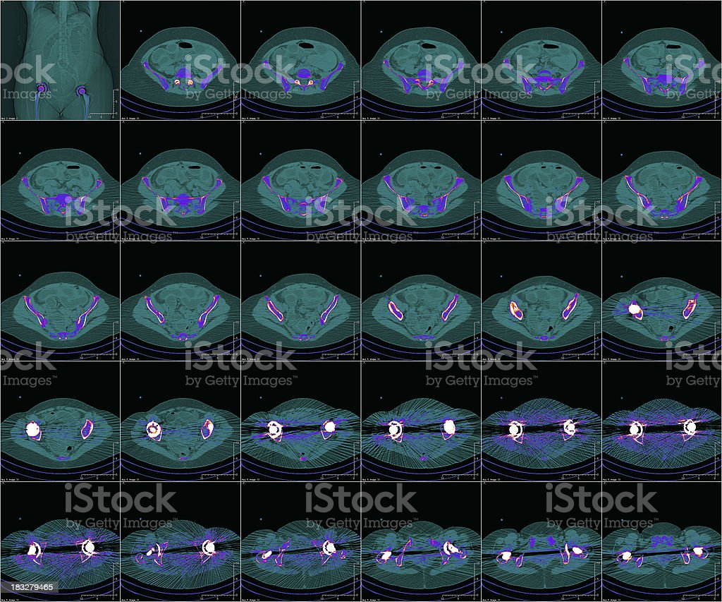 hip and implants in color CT stock photo