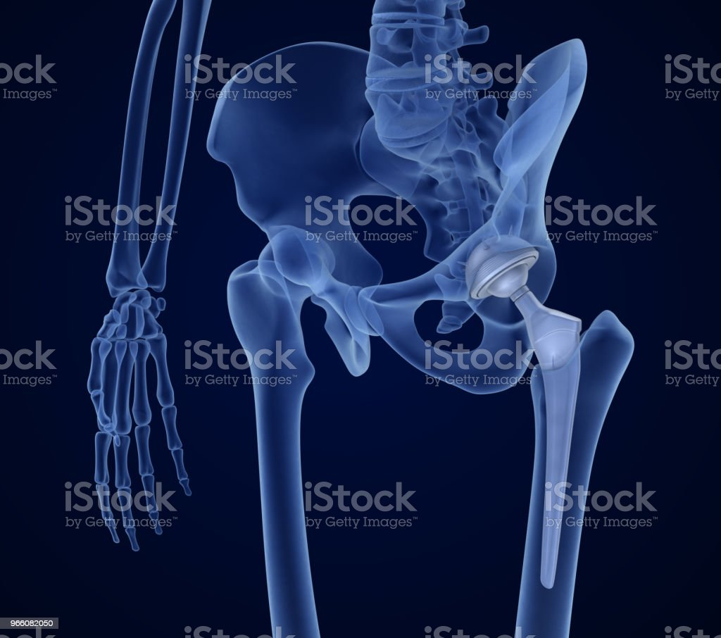 Hip replacement implant installed in the pelvis bone. X-ray view. Medically accurate 3D illustration - Стоковые фото Анатомия роялти-фри