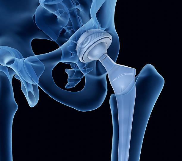 Hip replacement implant installed in the pelvis bone. X-ray view. stock photo