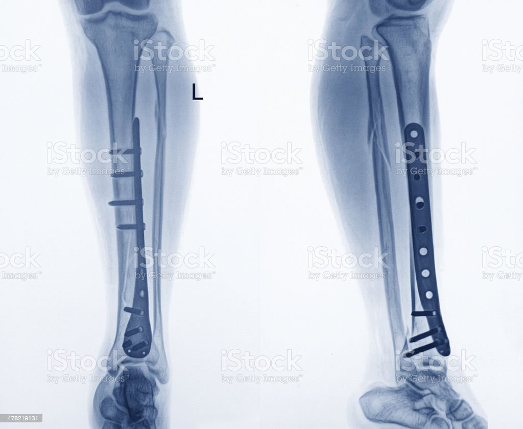 Hip replacement stock photo