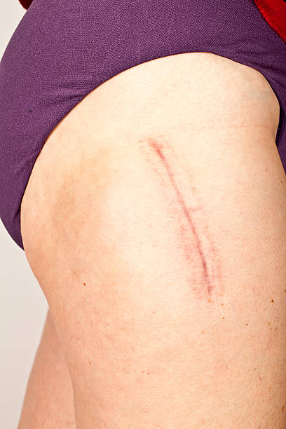 Hip replacement surgery scar Hip replacement surgery scar 9 months after surgery on a 63 year old woman.  scar stock pictures, royalty-free photos & images