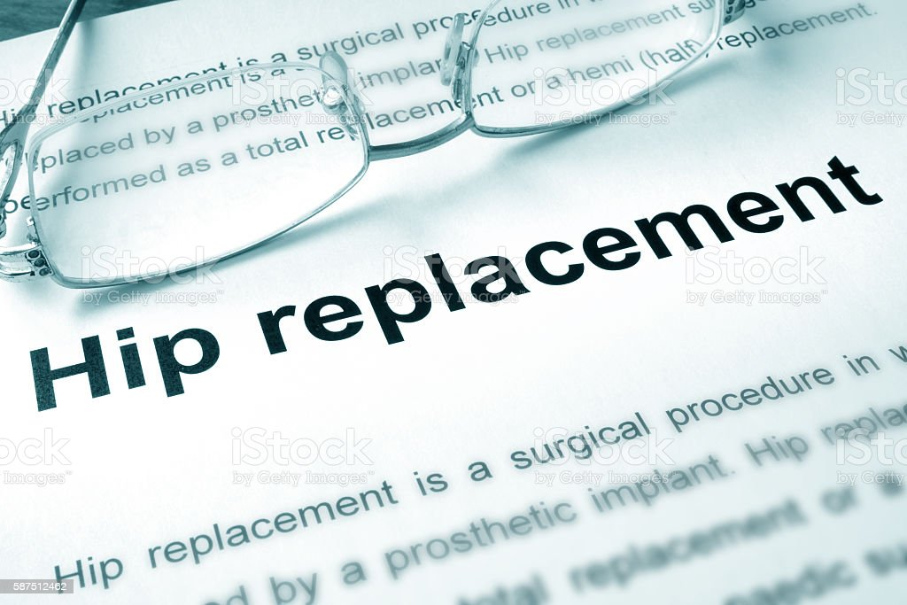Hip replacement written on a page. stock photo