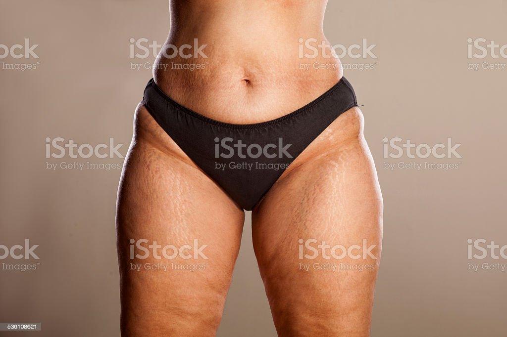 Толстые ляжки целлюлит фото — pic 7