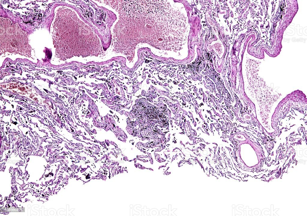 Histology of human tissue, show lung of smoking as seen under the microscope, 10x zoom stock photo