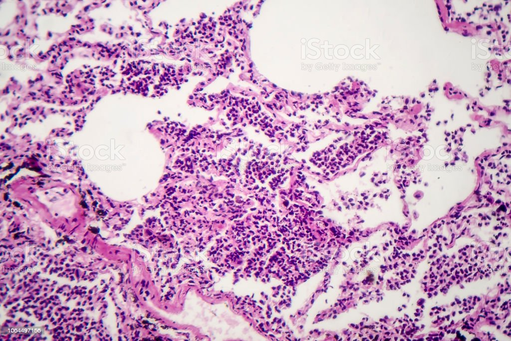 Histopathology of interstitial pneumonia stock photo