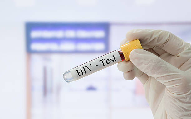 hiv test Doctor holding sample blood collection tube with HIV test label in front of the laboratory. hiv stock pictures, royalty-free photos & images