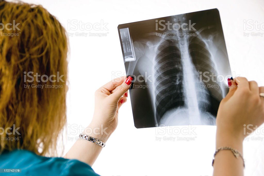 Holding x-ray royalty-free stock photo