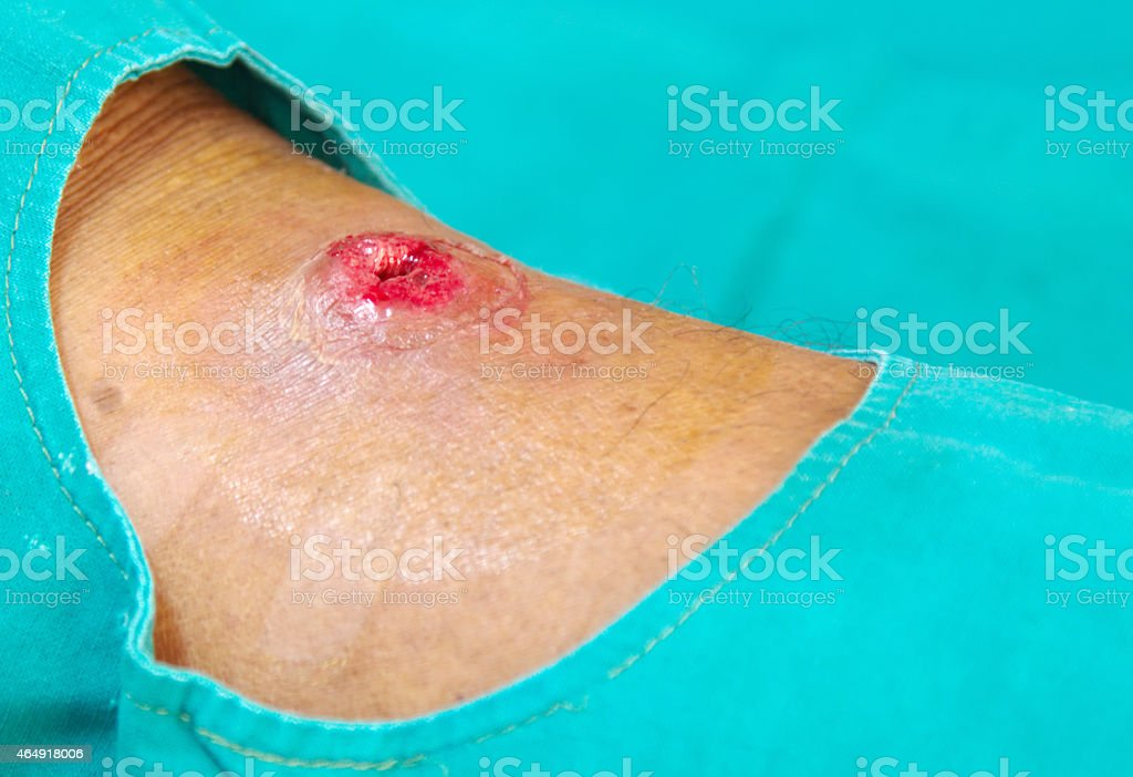 hole abscess wound stock photo