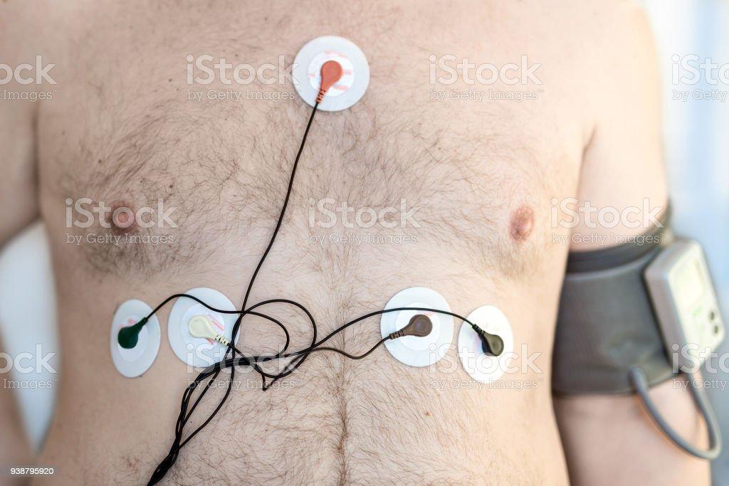 Fotografía de Holter Monitor Dispositivo Y Diario Registrador De La ...
