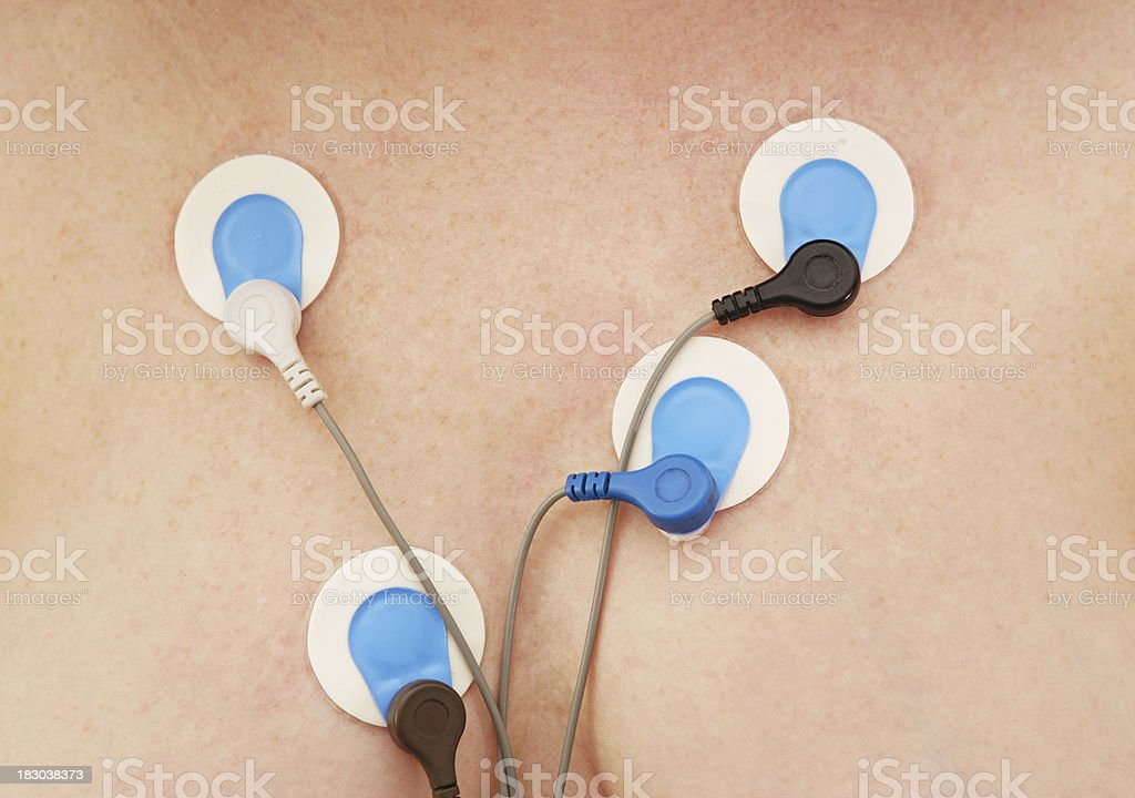 Holter Monitor Sensors stock photo