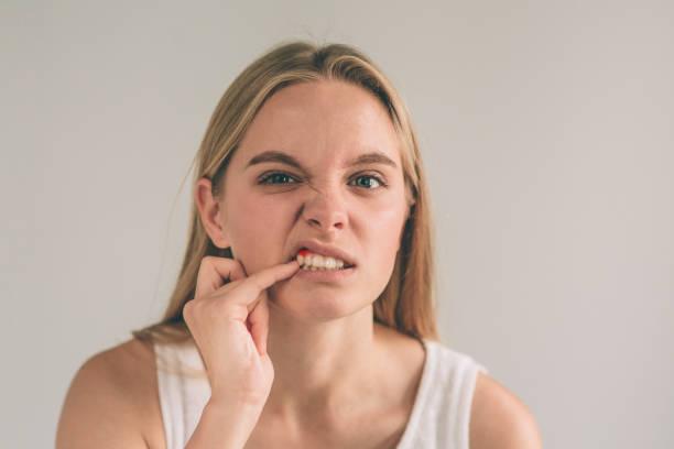 een horizontale foto van een jonge bezorgd vrouw in geruite shirt lijdt aan sterke kiespijn en het aanraken van haar wang - kauwgom stockfoto's en -beelden