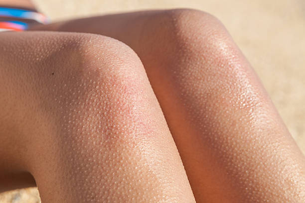 Horripilation from the cold on legs Horripilation from the cold on legs goosebumps stock pictures, royalty-free photos & images