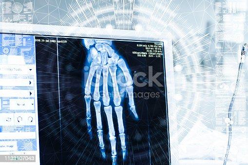 157642425istockphoto Hospital AI 1133107043