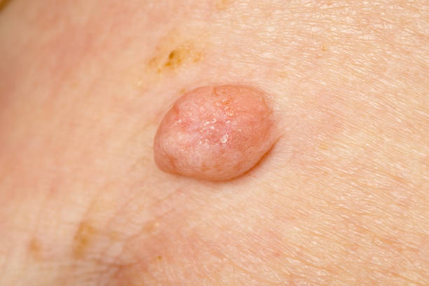 Huge wart on human skin Close up photo of huge wart on human skin wart stock pictures, royalty-free photos & images