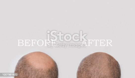 Human alopecia or hair loss - adult man hand holding comb on bald head. Before and after concept