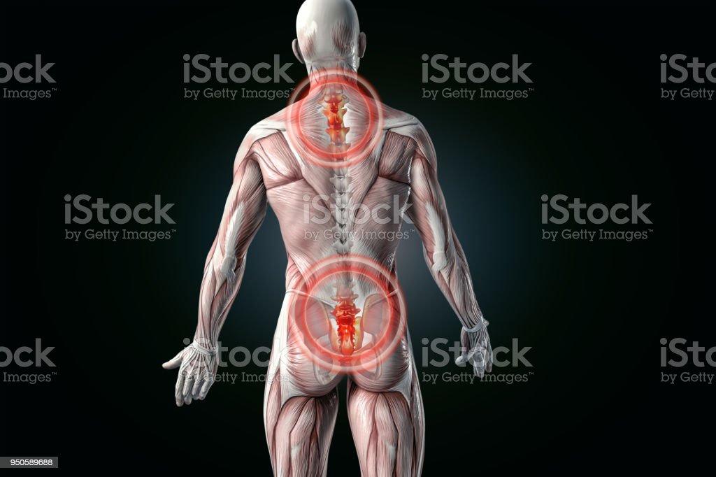 Human Anatomy Anatomical Vision Back Pain Stock Photo & More ...