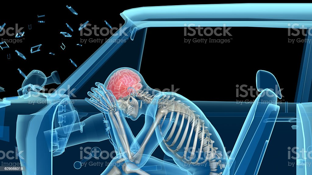Human Anatomy In A Car Crash Bones And Brain Stock Photo & More ...
