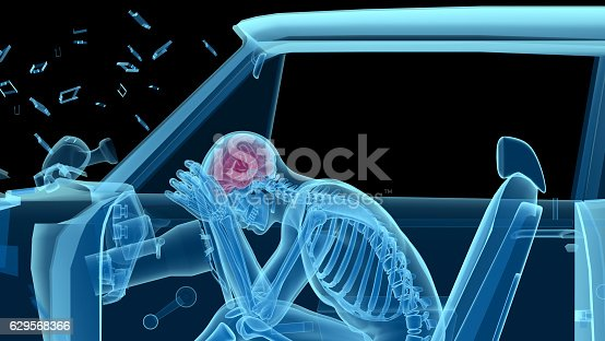 X-ray of a man in a car accident, frontal collision, showing skeleton and brain. Side view. Isolated on black background. Great to be used in medicine works and health.