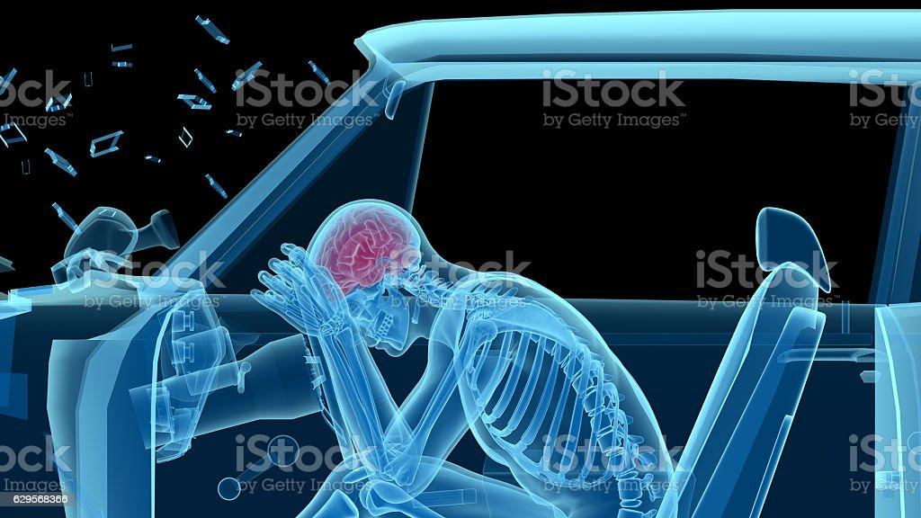 Human anatomy in a car crash, bones and brain stock photo