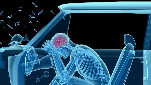 human anatomy in a car crash, bones and brain - head injury stock photos and pictures